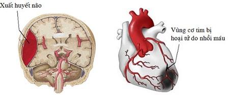 Tăng huyết áp đột ngôtj ảnh hưởng trực tiếp đến các mạch máu, não và tim
