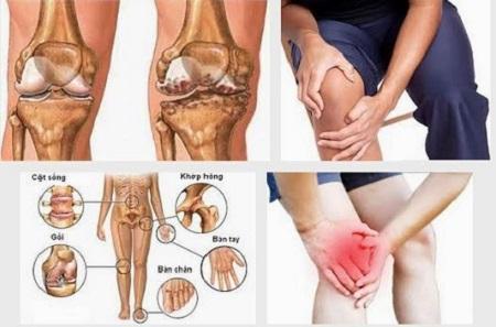 Đau nhức xương khớp là một trong các bệnh về xương khớp, nó rất phổ biến và thường gặp ở người lớn tuổi