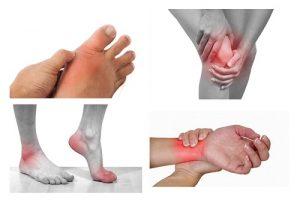 Nhức mỏi chân tay nên uống thuốc gì cho mau khỏi?