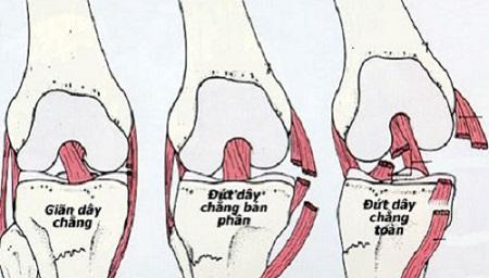 Nếu gặp phải chấn thương nặng đứt hẳn dây chằng cần phải phẫu thuật và thời gian bình phục khá lâu