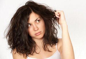 Tiết lộ cách điều trị vảy nến da đầu mà bạn chưa biết